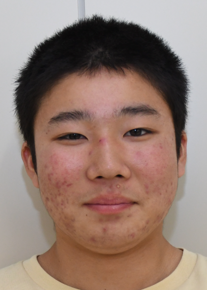 #15 Otoya Hashimoto